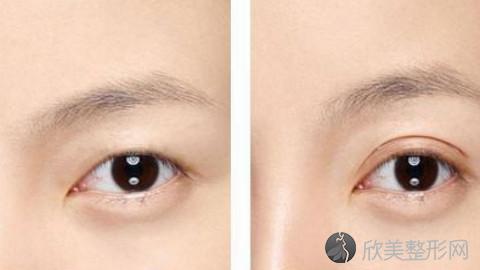 朴相根做双眼皮技术怎么样?朴相根做双眼皮好不好?内附真实手术案例