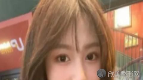 郑州医学院王琪影做双眼皮好不好?内附双眼皮整形及最新整形价格表分享