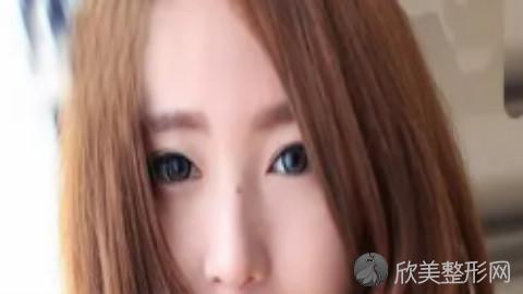 沈阳杨庆峰做双眼皮好不好?内附整形案例分享及最新整形价格表