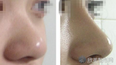 长沙宇美李时雨鼻修复手术做得好不好?内附隆鼻修复手术案例