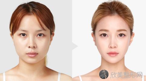 上海美联臣刘双立脂肪填充好不好?内附脂肪移植填充全脸案例分享及最新整形
