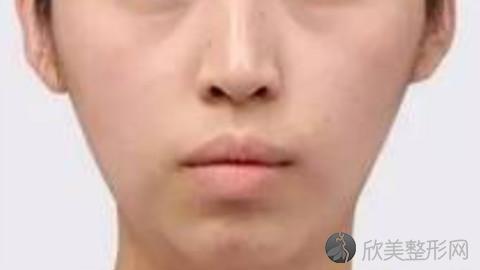 上海九院谢峰脂肪填充到底好不好?内附脂肪填充案例及最新整形价格表