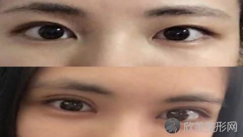 大连割双眼皮的医生哪个比较好?内附整形医生简介及最新整形价格表