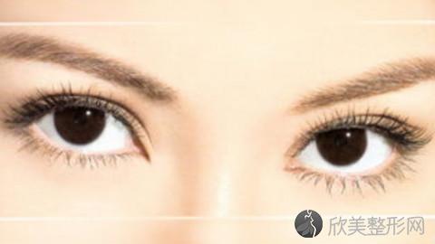 唐山割双眼皮的医生哪个比较好?内附整形医生简介及最新整形价格表