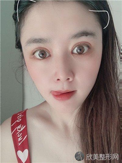 北京柏丽医疗美容门诊部靠谱吗?附案例 价格表一览