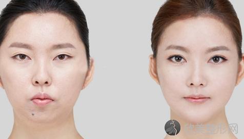 北京联合丽格罗金超做下颌角好不好?内附下颌角磨骨案例分享及最新整形价格
