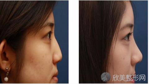 北京米扬丽格夏正义脂肪填充怎么样?全脸脂肪填充多少钱?案例分享