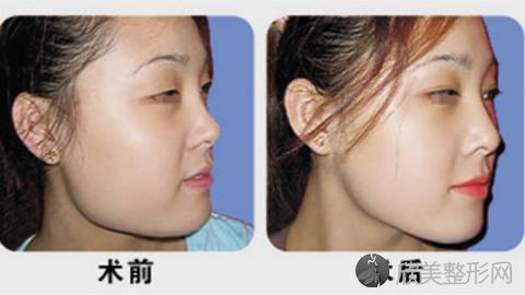 北京八大处张智勇磨骨怎么样?张智勇磨骨改脸型案例及价格表