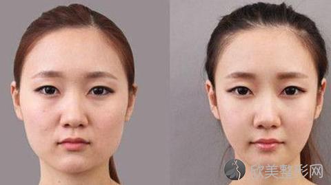 彭喆下颌角和颧骨手术怎么样?彭喆下颌角和颧骨内推案例及价目表