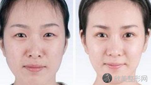 北京八大处祁佐良做下颌角手术怎么样?祁佐良下颌角磨骨案例及价格表