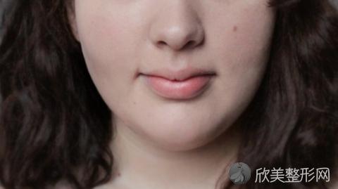 上海仁爱医院刘先超磨骨技术怎么样?附刘先超磨骨案例,V脸梦想成真!