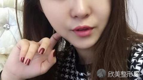上海首尔丽格朴兴植磨骨怎么样?附朴兴植磨骨案例,太厉害了!