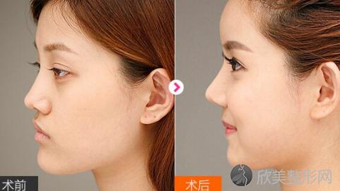 上海九院韦敏做下颌角怎么样?附韦敏下颌角截骨案例及费用表