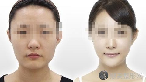 上海首尔丽格崔荣达磨骨怎么样?崔荣达磨骨改脸型案例及价格表