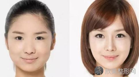北京圣嘉新张笑天改脸型怎么样?张笑天磨骨改脸型案例及价格表