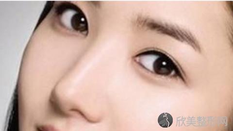 济南割双眼皮的医生哪个好?济南割双眼皮手术好的医生排名推荐及案例