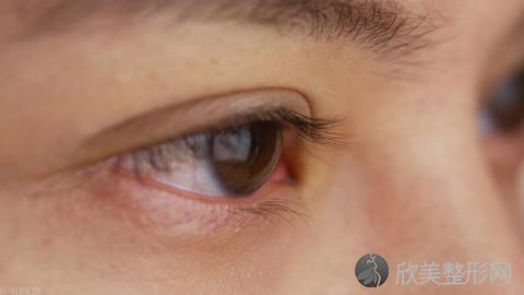 沈阳割双眼皮的医生哪个好?沈阳割双眼皮手术好的医生排名推荐及案例