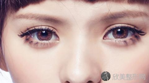 常州双眼皮手术比较好的医生有哪些?常州做双眼皮出名的医生排名推荐及案例