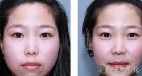 北京联合丽格何照华做下颌角怎么样?附何照华下颌角磨骨案例和收费表!