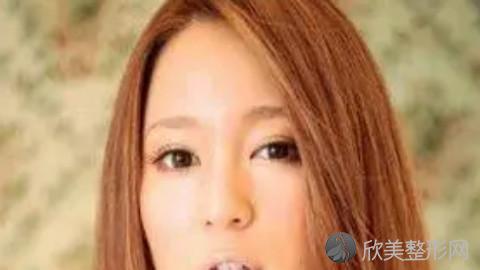杭州哪个医生做眼袋手术好?杭州内切去眼袋手术医生排名推荐及案例