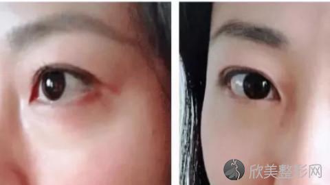 合肥哪个医生做眼袋手术好?合肥内切去眼袋手术医生排名推荐及案例