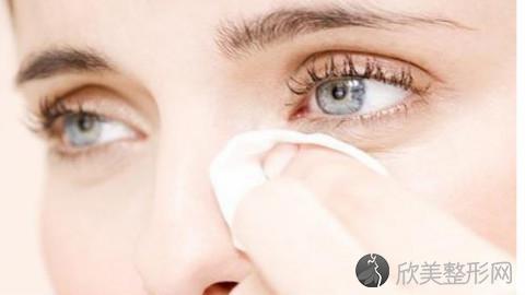海口割双眼皮的医生哪个好?海口割双眼皮手术好的医生排名推荐及案例