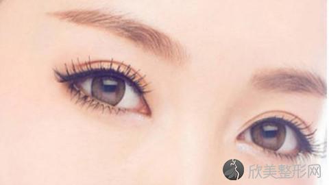 杭州割双眼皮的医生哪个好?杭州割双眼皮手术好的医生排名推荐及案例