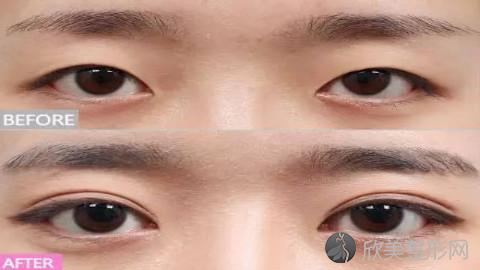 南昌割双眼皮的医生哪个好?南昌割双眼皮手术好的医生排名推荐及案例