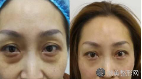 西安哪个医生做眼袋手术好?西安内切去眼袋手术医生排名推荐及案例