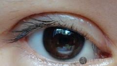 鞍山双眼皮做得好的医生有哪些?鞍山做双眼皮好的医生排名推荐