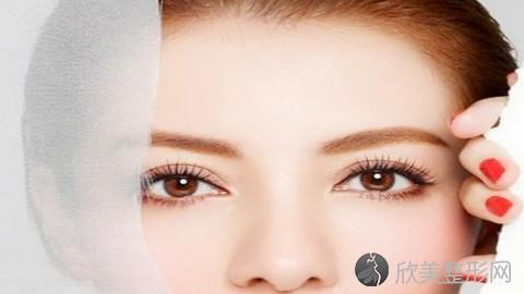 青岛眼袋手术哪些医生比较好?青岛内切去眼袋手术医生推荐及案例分享