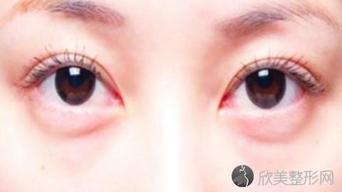 佛山哪个医生做眼袋手术好?佛山内切去眼袋手术医生排名推荐及案例
