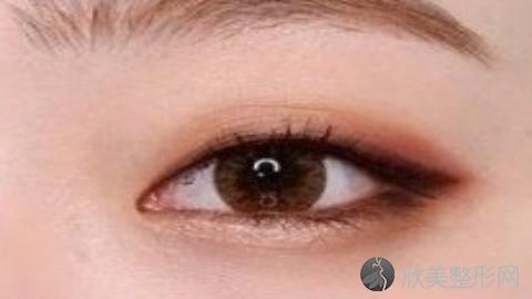 汕头做双眼皮比较好的医生有哪些?汕头做双眼皮好的医生推荐及案例分享