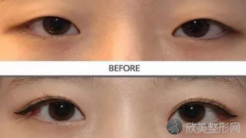 洛阳做双眼皮比较好的医生有哪些?洛阳做双眼皮好的医生推荐及真实案例分享