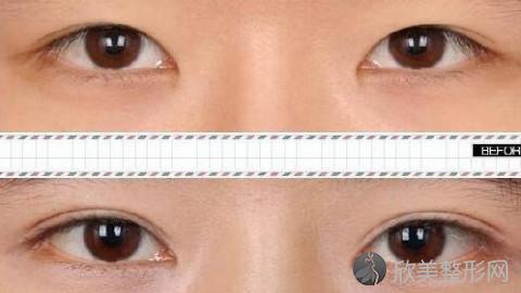 吉林做双眼皮好的医生有哪些?吉林做双眼皮好的医生推荐及真实案例分享