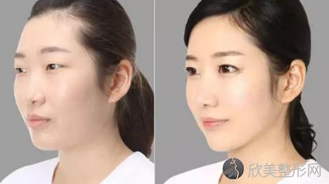 上海时光何晋龙下颌角手术怎么样?下颌角截骨案例,太好看了!