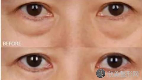 沈阳哪个医生做眼袋手术好?沈阳内切去眼袋手术医生排名推荐及案例