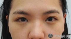 保定双眼皮手术有哪些比较好的医生推荐?内附双眼皮整形案例及