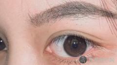 东莞双眼皮手术比较好的医生排行榜!内附整形医生简介及最新