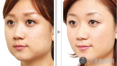 广州广大柳超做下颌角怎么样?附柳超下颌角手术案例及价格表