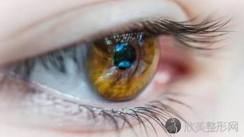 哈尔滨割双眼皮的医生哪个好?哈尔滨割双眼皮手术好的医生排名推荐及案例