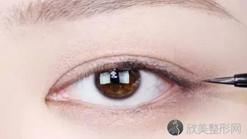 广州割双眼皮的医生哪个好?广州割双眼皮手术好的医生排名推荐及案例