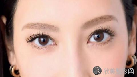 黄石做双眼皮比较好的医生有哪些?黄石做双眼皮医生排名及案例分享