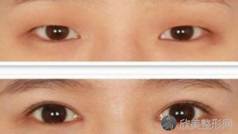 北京割双眼皮的医生哪个好?北京割双眼皮手术好的医生排名推荐及案例