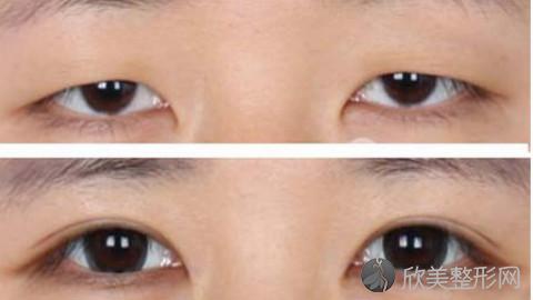成都割双眼皮的医生哪个好?成都割双眼皮手术好的医生排名推荐及案例