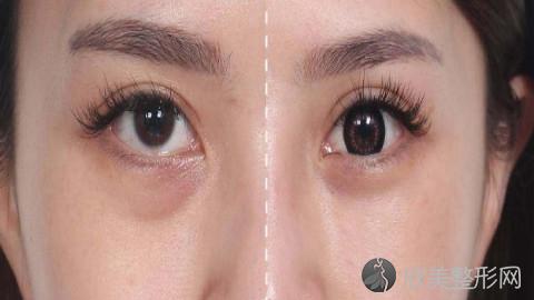 济南哪个医生做眼袋手术好?济南内切去眼袋手术医生排名推荐及案例
