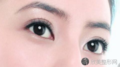 沈阳双眼皮手术比较好的医生有哪些?沈阳做双眼皮出名的医生排名推荐及案例