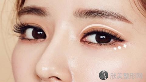 绵阳哪个医生做眼袋手术好?绵阳内切去眼袋手术医生排名推荐及案例