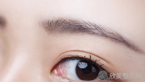徐州双眼皮手术比较好的医生有哪些?徐州做双眼皮出名的医生排名推荐及案例