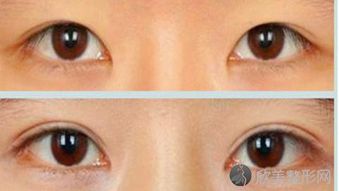 赣州双眼皮手术比较好的医生有哪些?赣州做双眼皮出名的医生排名推荐及案例
